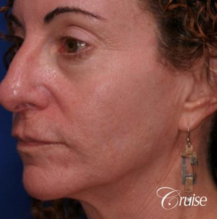 best female chemical peel - After Image