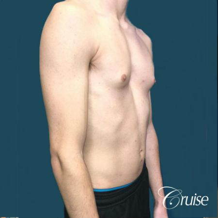 Top Gynecomastia Specialist Dr. Cruise - Before and After Image 5