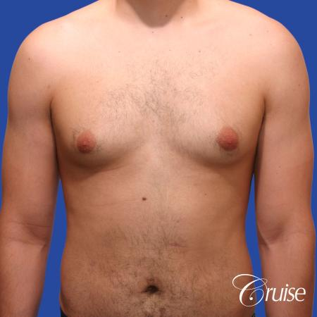 20 year old with moderate gynecomastia - Before Image 1