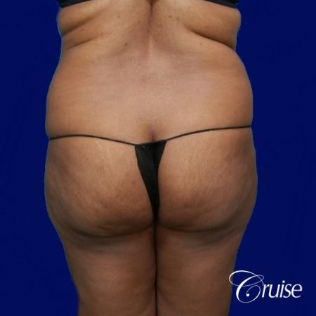 Liposuction Flanks - Before and After Image 4
