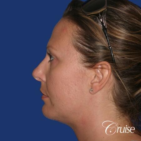 best before and after of chin augmentation medium implant -  After Image 2