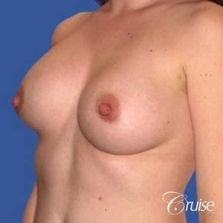 best surgeon for breast revision capsular contracture - Before Image 3