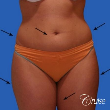 best liposuction results on abdomen, flanks, thighs - Before Image 1