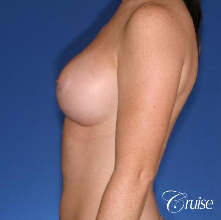 Breast Augmentation: Patient 44 - After Image 2