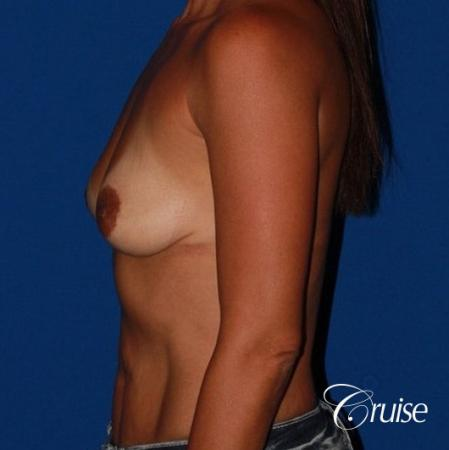 best breast lift on 41 yr old with HP silicone - Before Image 2