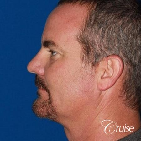 best pictures of chin augmentation with specialist -  After Image 2