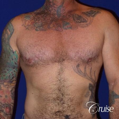 Moderate Gynecomastia -Areola Incision - After Image 1