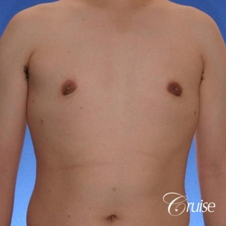 young male with mild gynecomastia surgery for puffy nipple -  After 1