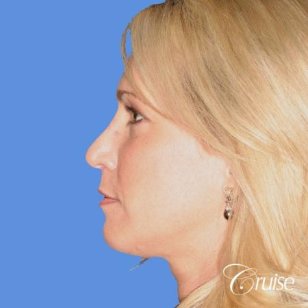 female with natural looking chin implant -  After Image 2