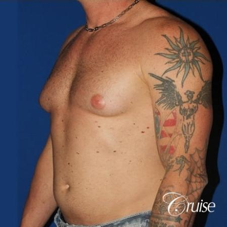 moderate gynecomastia with puffy nipple on athletic adult - Before Image 2