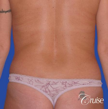 liposuction abdomen flanks with tummy tuck - Before Image 1