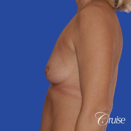 breast lift anchor with silicone implants on adult - Before Image 2