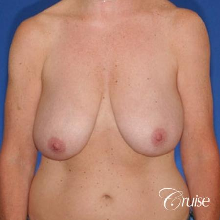 best breast lift anchor with high profile saline implants - Before Image 1