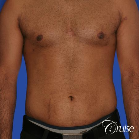 young adult with gyno gets gynecomastia surgery -  After Image 1