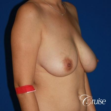 best results for breast lift anchor with saline implanta - Before and After Image 4