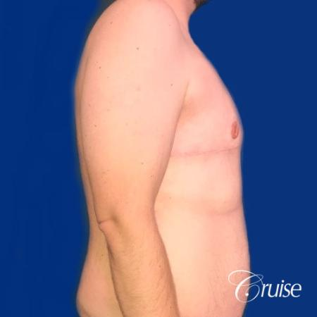 Pedicle incision Dr. Cruise Newport Beach CA -  After Image 4