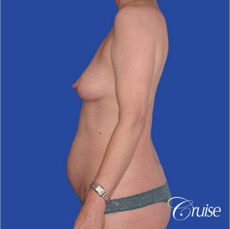 low mini tummy tuck with D cup  breast augmentation - Before Image 2