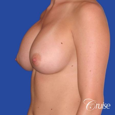 best pictures of breast revision for capsular contracture - Before Image 1