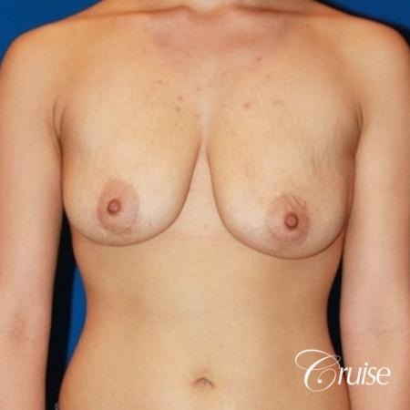 breast lift anchor with saline implants on young girl - Before Image 1
