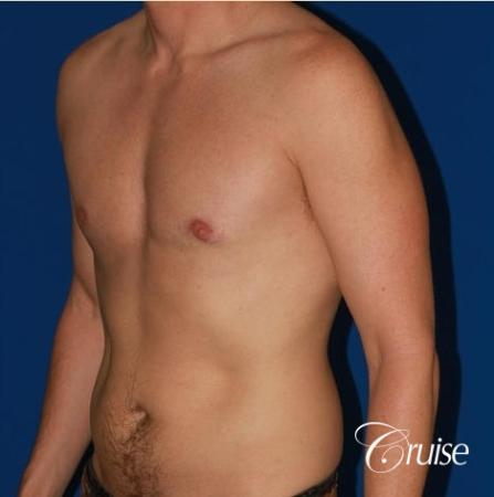 puffy nipple on low body fat -  After Image 3