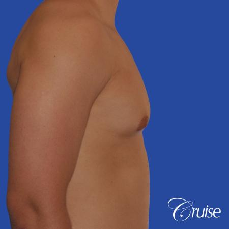 mild gynecomastia with puffy nipple and areola incision - Before and After Image 3