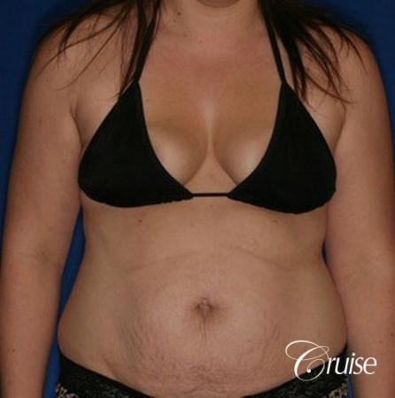 best results on young woman for breast lift anchor with saline augmentation - Before Image 5