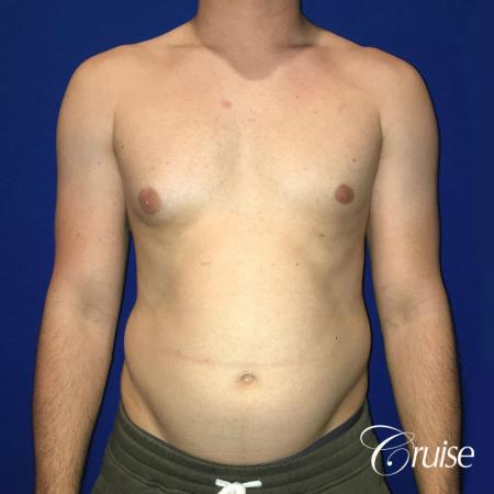 Moderate Gynecomastia -Puffy Nipple -Areola Incision - Before Image