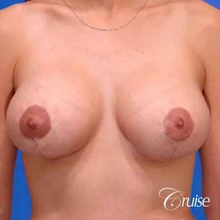 best results for breast lift anchor with top plastic surgeon -  After Image 1