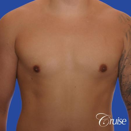 mild gynecomastia with puffy nipple and areola incision -  After Image 1