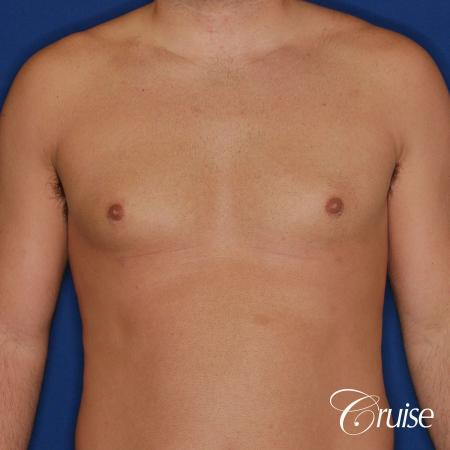 male patient has mild gynecomastia -  After Image 1