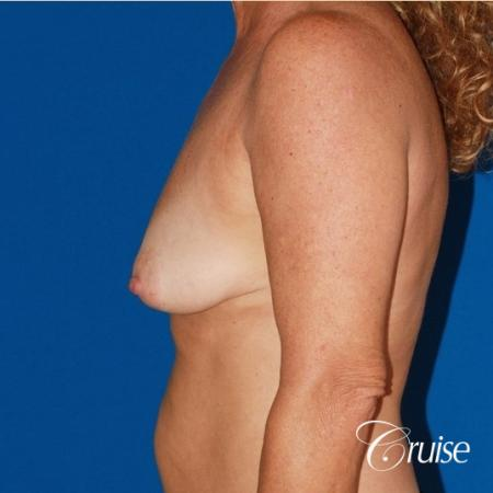 best high profile silicone breast lift 425cc - Before Image 2