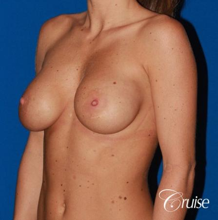 breast reconstruction better cleavage and capsulectomy - Before Image 3