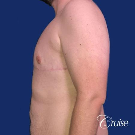 Pedicle incision Dr. Cruise Newport Beach CA -  After Image 2