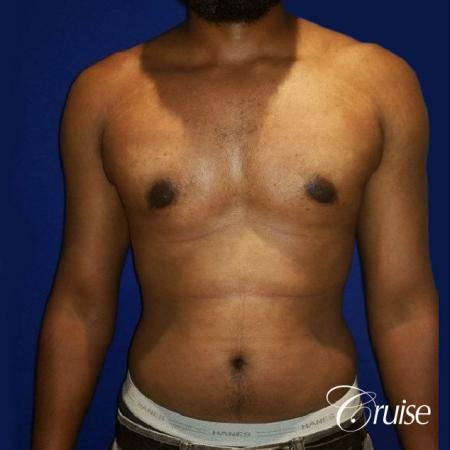 Moderate Gynecomastia -Puffy Nipple -Areola Incision - After Image 1