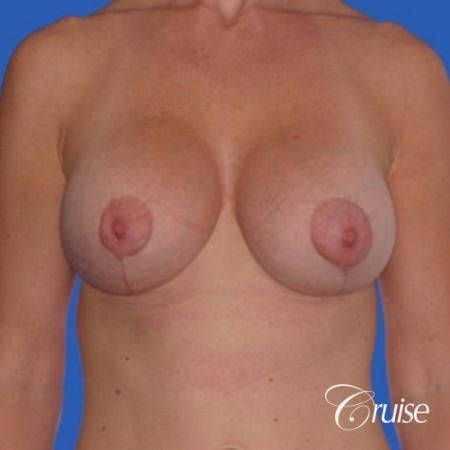 best breast lift anchor with silicone implants -  After Image 1