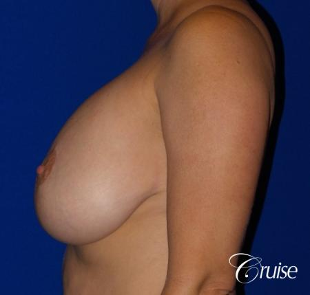 Breast Lift And Augmentation: Patient 6 - Before and After Image 3