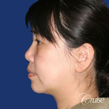 best chin implant photos with large implant -  After Image 2