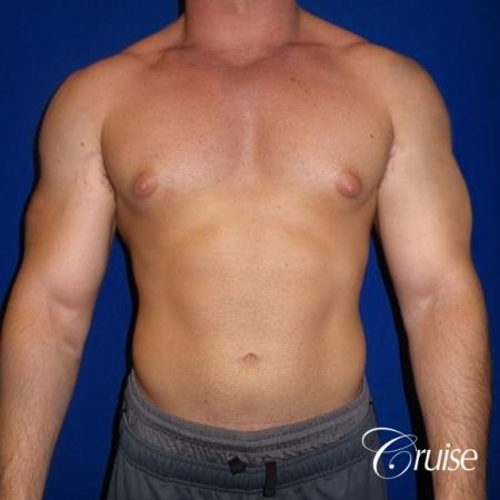 Pictures of young bodybuilder with gynecomastia - Before Image 1