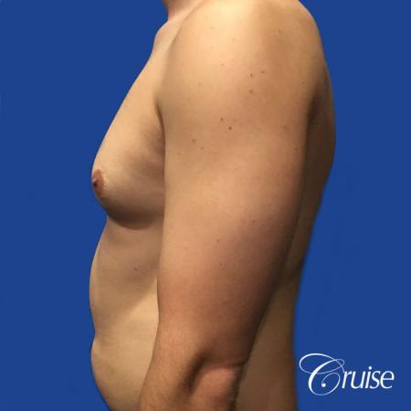 gyne before and afters orange county ca - Before and After Image 3