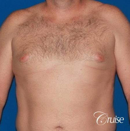 mild puffy nipple on 42 year old - Before Image 1