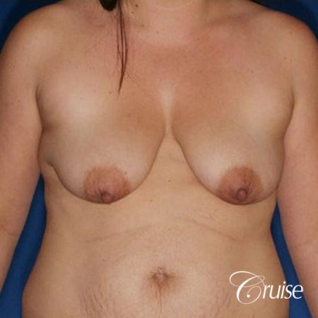 best results on young woman for breast lift anchor with saline augmentation - Before Image 1