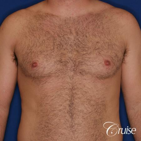 male patient has mild gynecomastia - Before Image 1