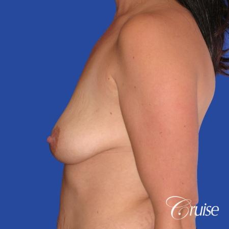 best scars on saline breast lift with top plastic surgeon in Newport Beach - Before Image 2