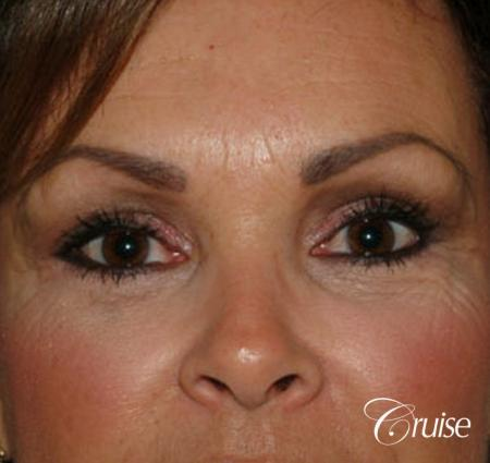 best blepharoplasty eye surgery photos - After Image