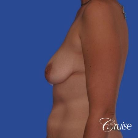breast lift anchor on young woman - Before Image 2