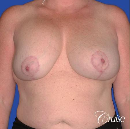 capsular contracture before and after pictures in Newport Beach - Before Image 1