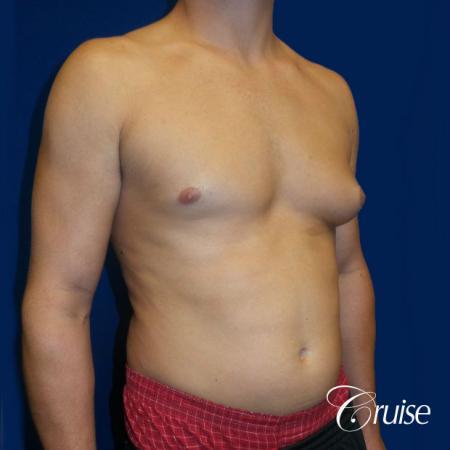 Unilateral gynecomastia condition photos - Before Image 2