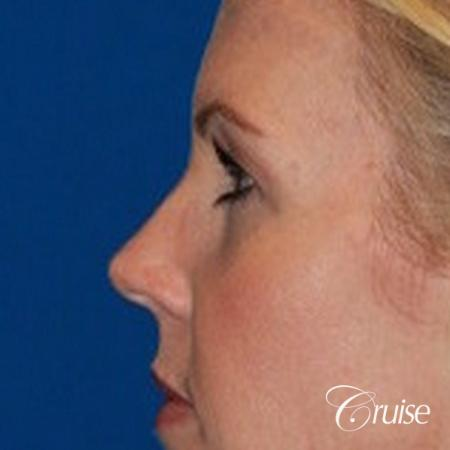 best upper eye lid results - Before Image 3
