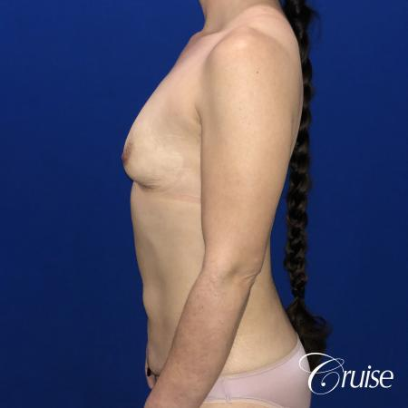 Breast Augmentation, Tummy Tuck - Before Image 2