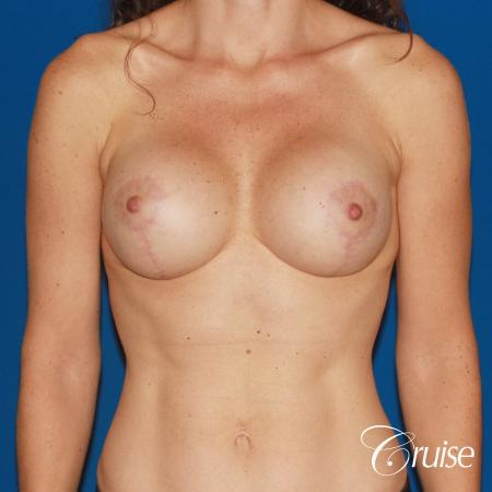 young woman with silicone breast lift anchor -  After Image 1